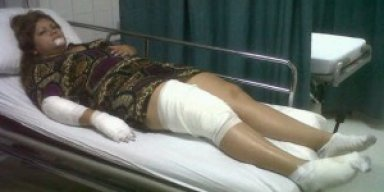 Kathleen Escalante sufrio graves heridas en accidente